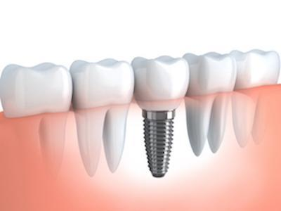 model of lower jaw with dental implant I dental implants in galloway oh