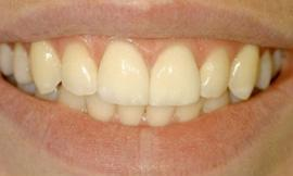 cosmetic dentistry galloway oh