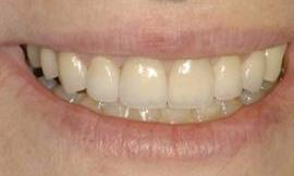 dental veneers galloway oh