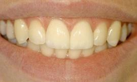 after cosmetic dentistry galloway oh