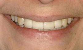 after porcelain veneers galloway oh
