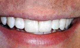 short term orthodontics and teeth whitening galloway oh