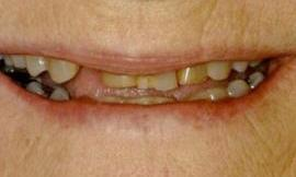 before cosmetic dental treatments galloway oh