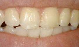 before cosmetic dentistry galloway oh