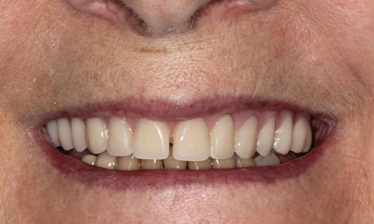 Dentures-Cosmetic-Dentistry-After-Image