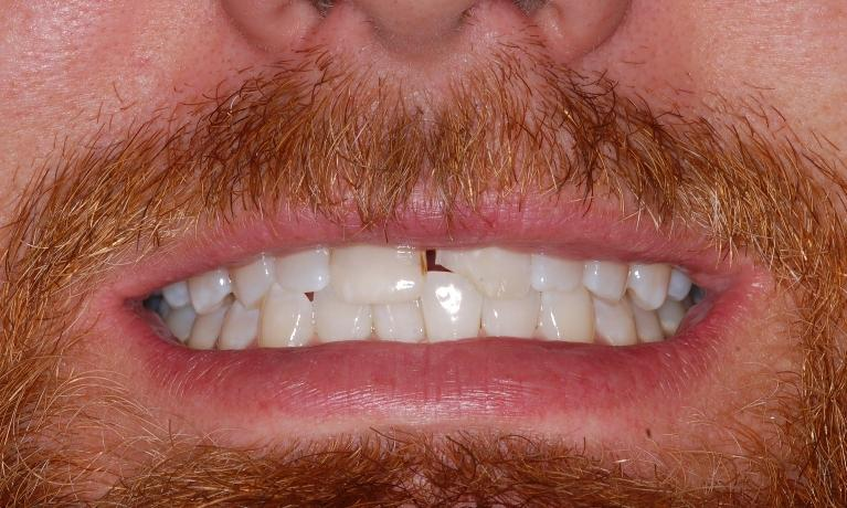 Cosmetic-Dentistry-Crowns-and-Bridges-Before-Image