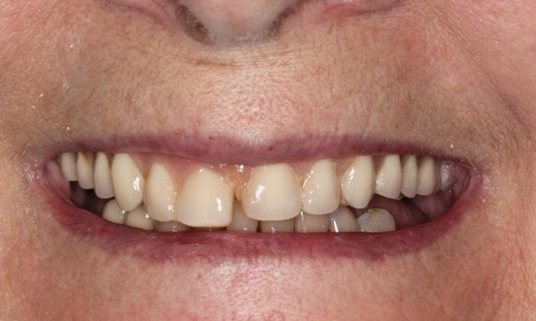Dentures-Cosmetic-Dentistry-Before-Image
